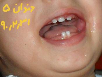 http://artin1389.persiangig.com/artindandane5.jpg